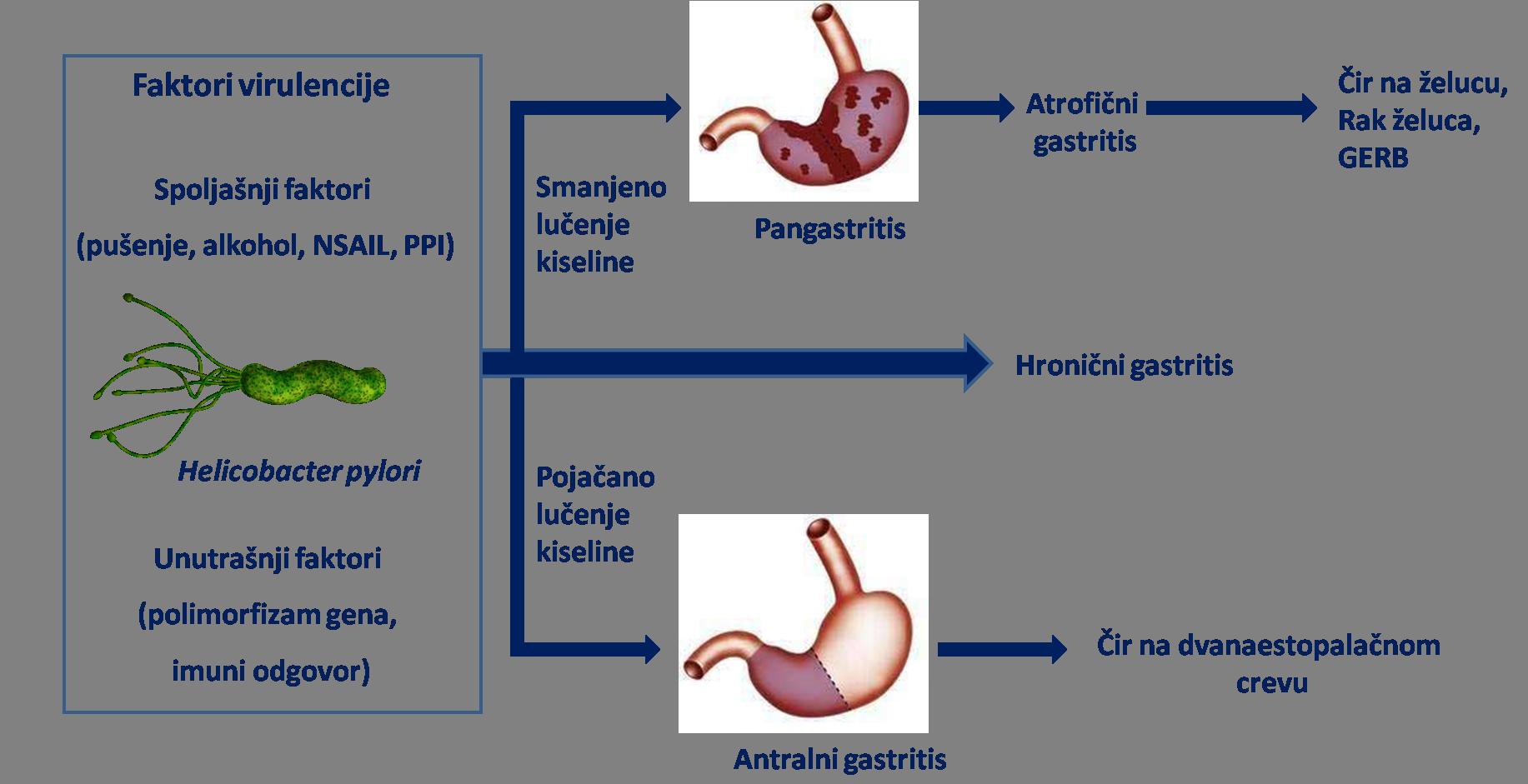 Gastritis Helikobakterija